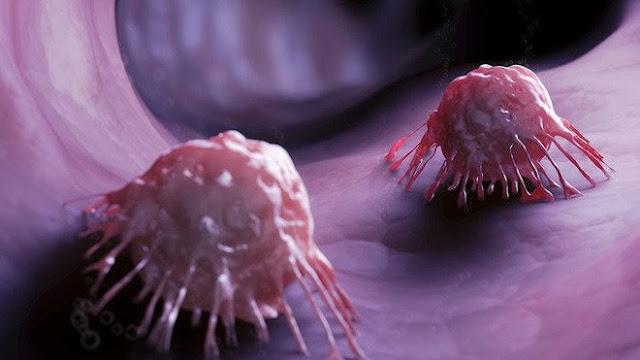 Loại 'lương dược' rẻ tiền phòng ung thư, mỡ máu, táo bón: Tiếc rằng bạn chưa biết tận dụng