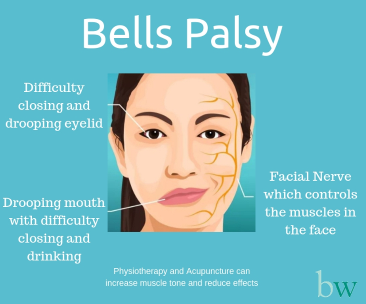 Apa Itu Penyakit Bell's Palsy