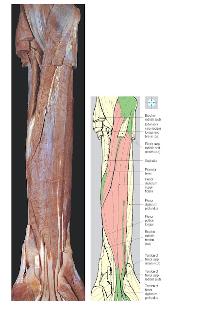 Fig. 3.32 Flexor digitorum superficialis and pronator teres, revealed by division of flexors carpi ulnaris and radialis, and of brachioradialis. The vessels and nerves in the forearm have been removed.