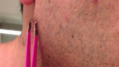 شعر تحت الجلد