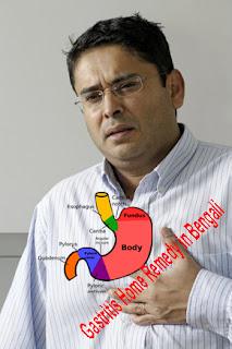 Gastritis Home Remedy in Bengali | ঘরোয়া উপায়ে দূর করুন গ্যাস্ট্রিক এর সমস্যা