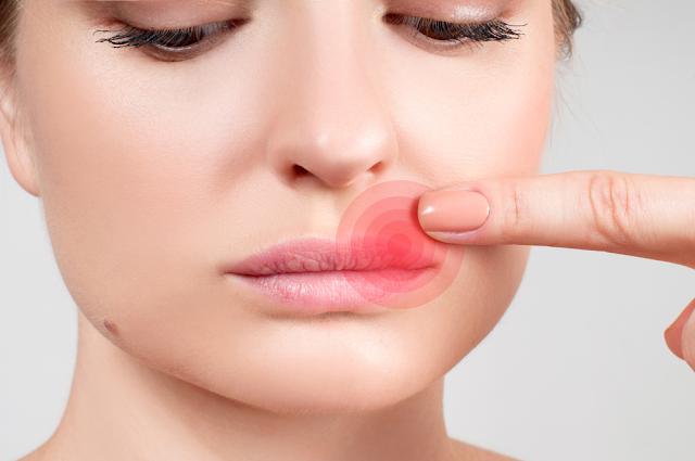 4 طرق فعالة لعلاج حبوب الوجه:
