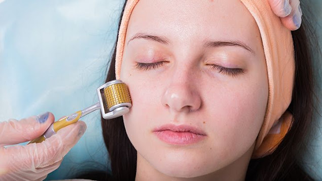 At-Home Microneedling