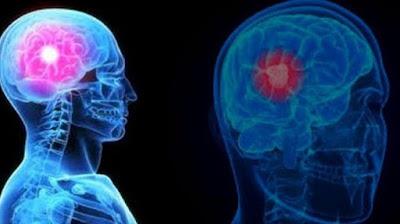 Gejala Kanker Otak Pada Pria Yang Wajib Anda Ketahui