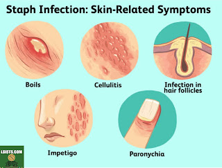 Symptoms Of Staphylococcus infections