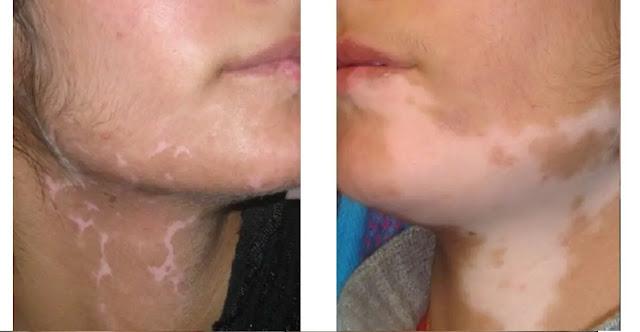 What is vitiligo?