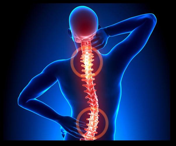 Afectiuni musculo-scheletale: stadii, factori de risc, recomandari