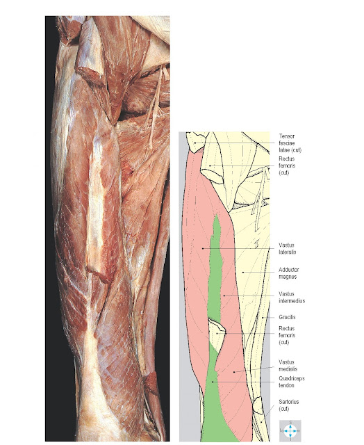 Quadriceps femoris. Vastus intermedius is partially revealed by removal of rectus femoris. Pectineus and adductors longus and brevis have been excised.