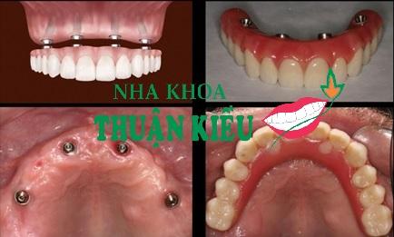 cay-ghep-rang-implant-all-on-4-nha-khoa-thuan-kieu-2016