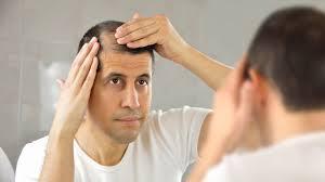 अगर आप भी बाल की समस्या से परेशान है तो ये आर्टिकल आपके लिए है - Causes of Hair loss