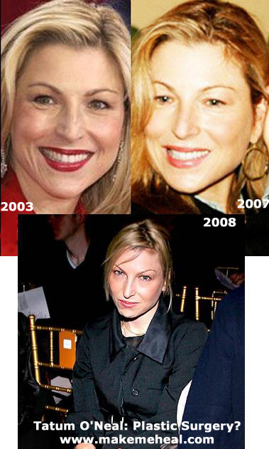 Tatum O Neal Plastic Surgery Before And After Photos