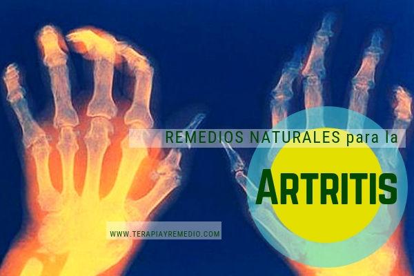 Remedios naturales para la artritis.Terapias alternativas para tratar el dolor articular