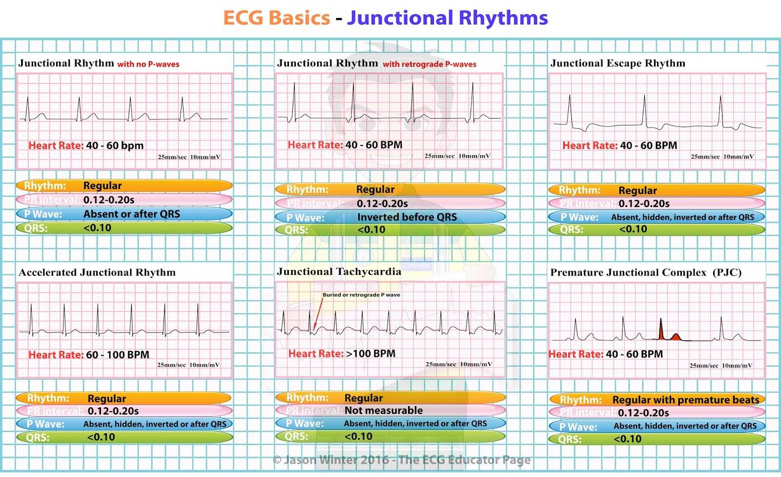 Ecg Educator Blog Junctional Rhythms
