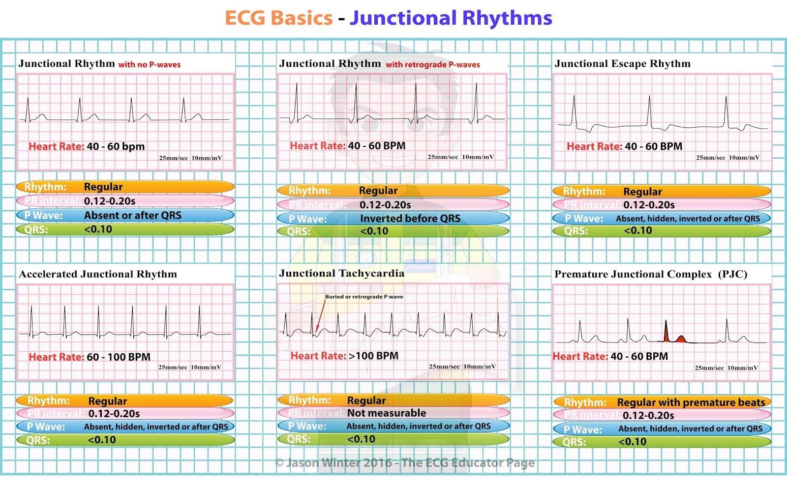 Ecg Educator Blog Junctional Rhythms