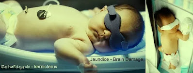 Jaundice Brain Damage - kernicterus