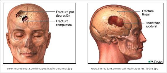Dolor de cabeza mareos confusión síntomas