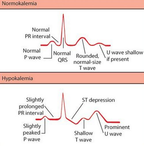 Hypokalemia - Symptoms, Causes, ECG and Treatment