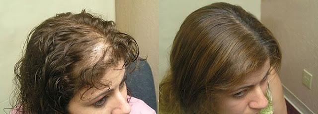 سميك وناعم - لقد حللت مشكلة فقدان الشعر فقط في أسبوع واحد!