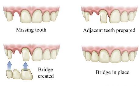 fix teeth bridge dental treament