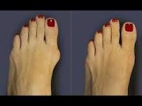 Лечение подагры Одесса, лечение подагры в Одессе, удаление косточек на ногах Одесса, удаление косточки на ноге лазером Одесса, подагра лечение Украина