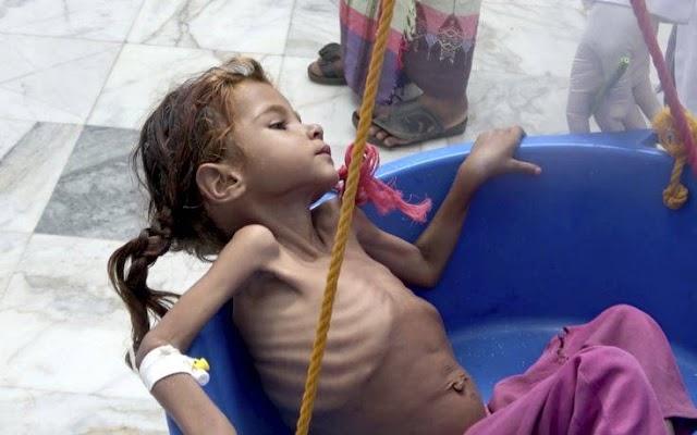 Πείνα, φτώχεια και ανέχεια «γονατίζουν» την Υεμένη