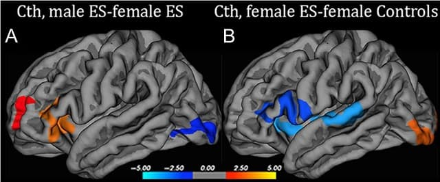 RMN si mobbing: grosimea corticala la femei si barbati