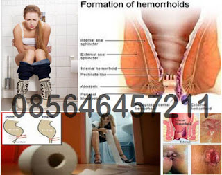 Sakit Wasir (Hemoroid) Akut, Solusinya Gimana Dok