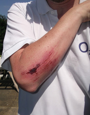 Picture of a grazed forearm after crashing on Dendix matting