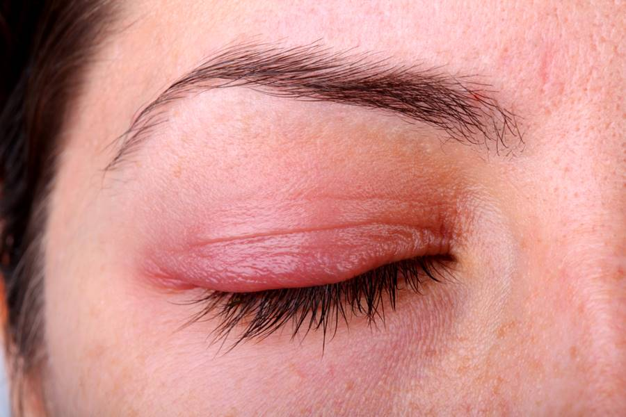 Cara Mengatasi Kelopak Mata Bengkak Saat Bangun Tidur