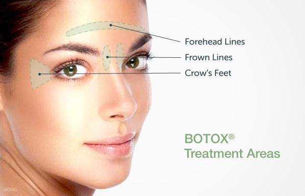At home botox details on diy injectables erase your age with botox the good and the bad of botox solutioingenieria Choice Image
