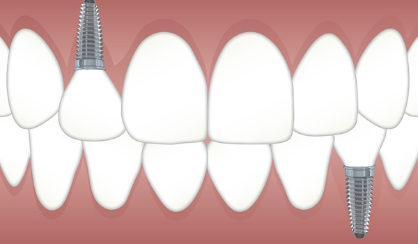 Dental Implants | Dental Implant Surgery | PintFeed