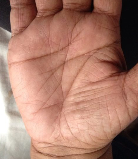 Example Of Wavy Sun Line In Practical Palmistry