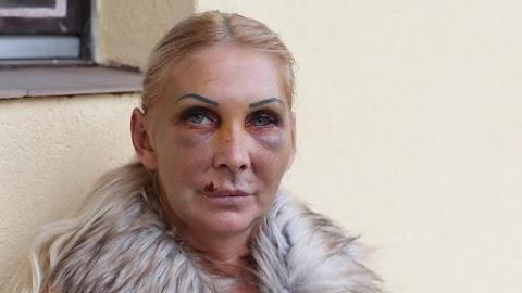 """""""Minden alkalommal megöl engem"""" – Rémálmok gyötrik Orosz Bernadettet, akit félholtra vert egykori párja"""