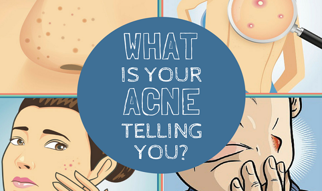 What Does Acne Reveal About Your Health? | Acne Face Map #infographic