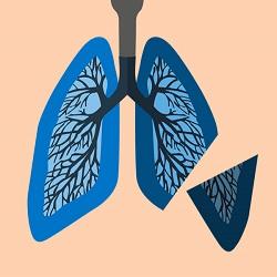 6 passos para uma recuperação suave após a cirurgia de câncer de pulmão