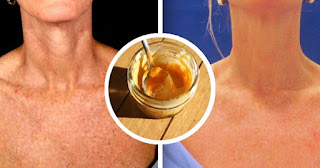 Lemon Recipe And Two Other Ingredients Erases Brown Spots And Repairs Sun Damage