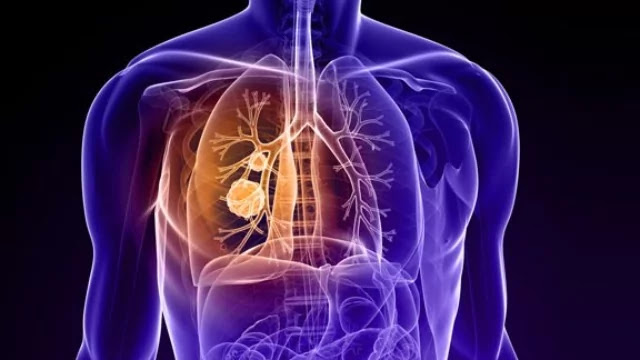 Lung Cancer in Non-smokers May Respond Differently to Treatment