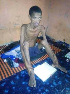 hospitalised during fasting and prayers2 - University Student Turns Skeleton After 40 Days Fasting And Prayer