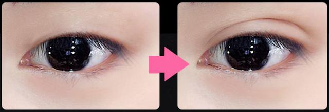 eyelid tape bandes adhésives paupières asiatiques