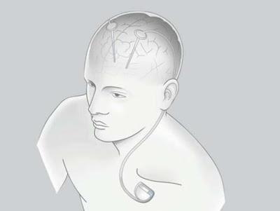 Yerli ve milli neuralink
