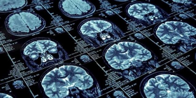 advanced neurology specialist tasks