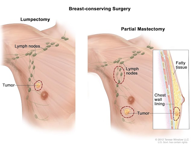 Breast Cancer in Men: Symptoms, Risk, Treatments and Genes