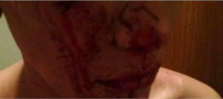 Vídeo mostra momento em que transexual é agredida por 20 pessoas em SP