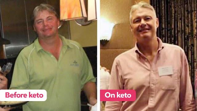 كيتو ضد مرض الكبد الدهنى