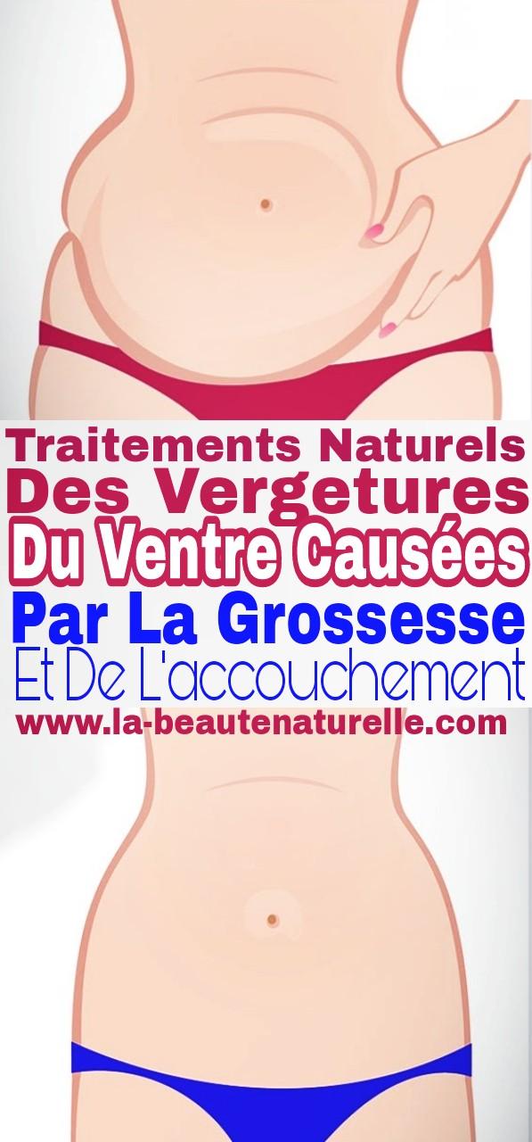 Traitements naturels des vergetures du ventre causées par la grossesse et de l'accouchement