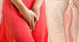 Penyebab Vagina Perih Sakit Luka Lecet Dan Cara Pengobatannya