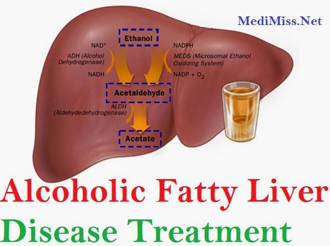 Non Alcoholic Fatty Liver Disease Natural Treatment