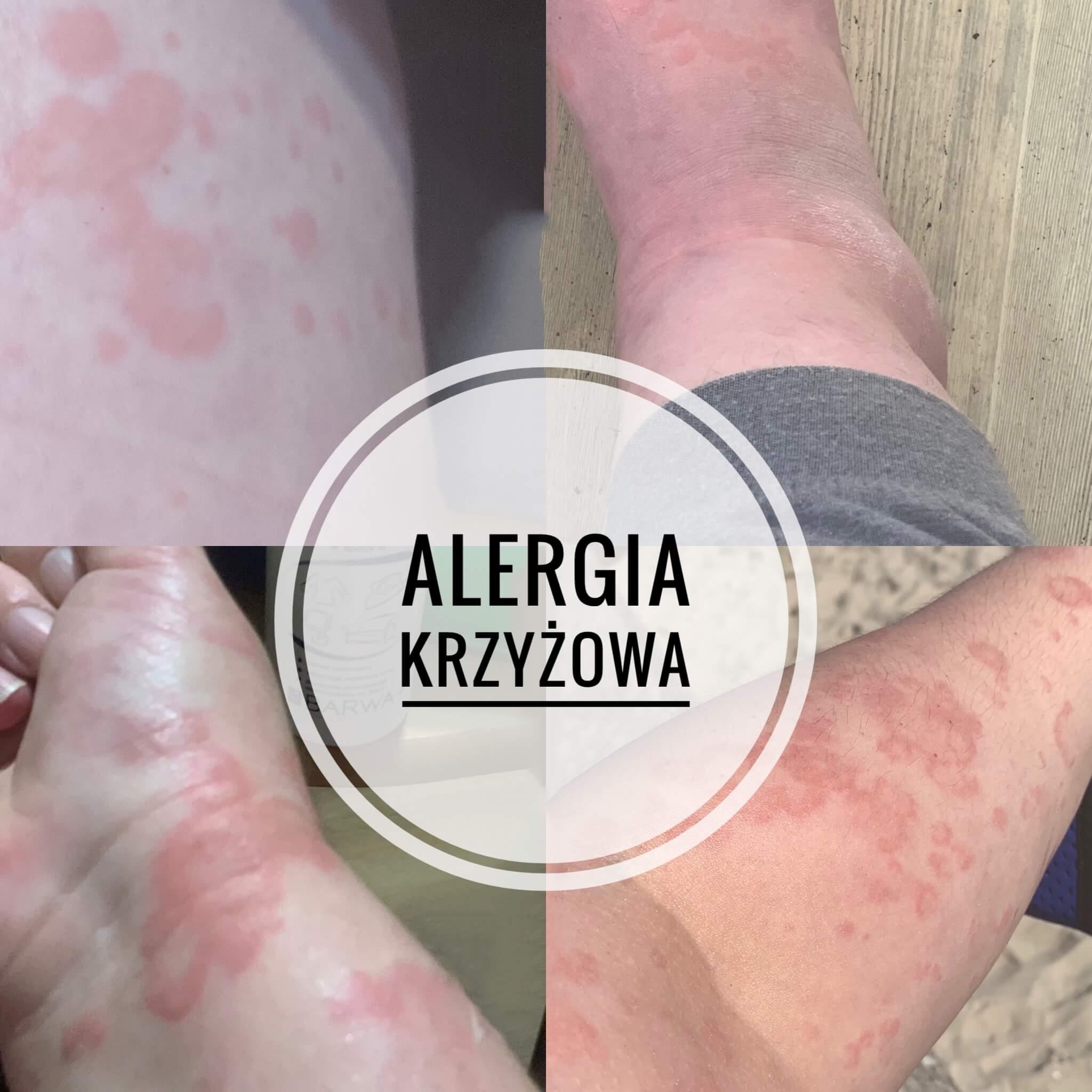 jak-wygląda-alergia-krzyżowa