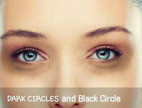 Dark circle problem