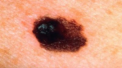 Mengenal Melanoma